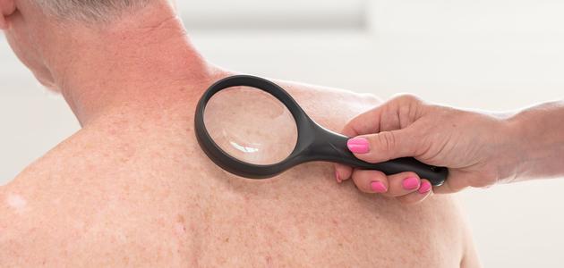 skin-examination