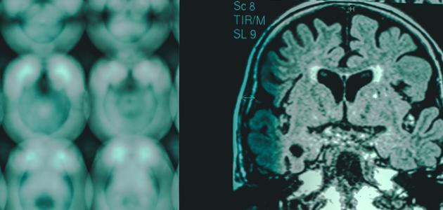 brain-scan-imaging